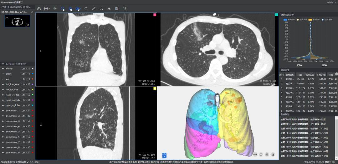 """园企抗疫行动丨战""""疫""""进行时,柏视医疗推出新冠肺炎辅助筛查系统"""